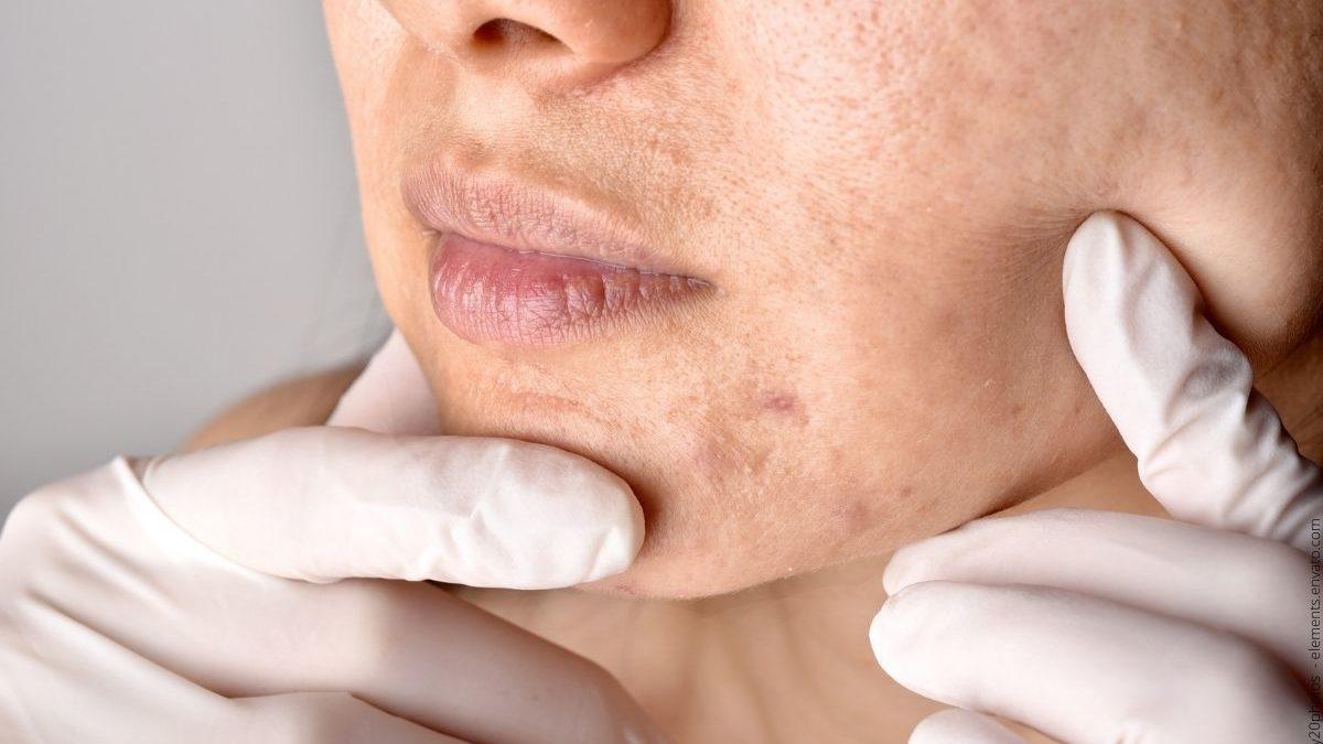 Akne natürlich heilen – Dieses Geheimnis solltest du über diese Hauterkrankung wissen