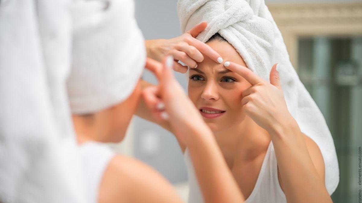 Was ist  Akne inversa? Eine detaillierte Übersicht